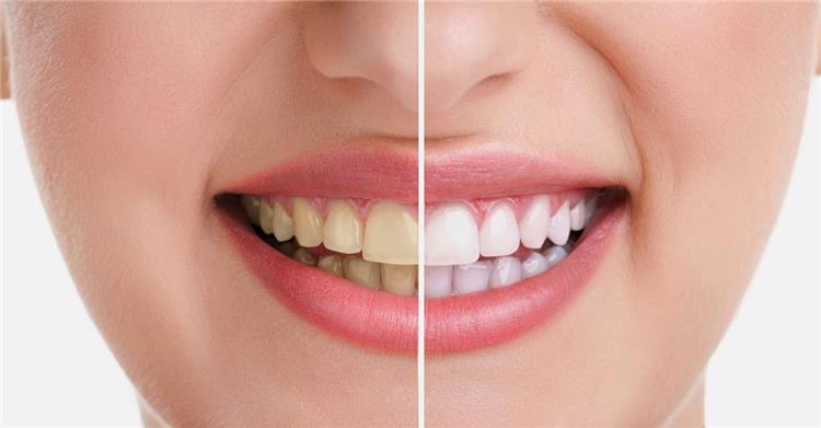 تبييض الأسنان بالليزر الفوائد والأضرار