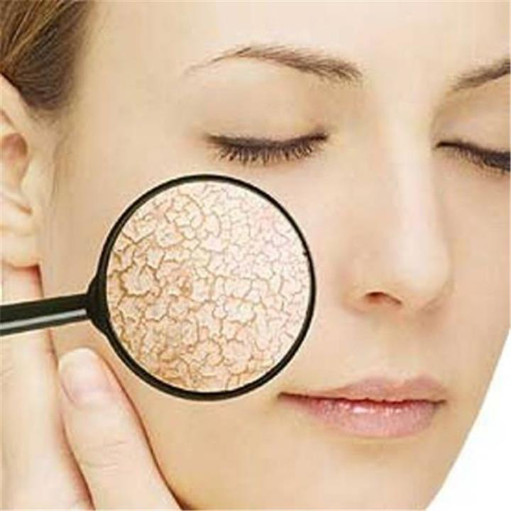 5 وصفات طبيعية لحماية بشرتك من أشعة الشمس