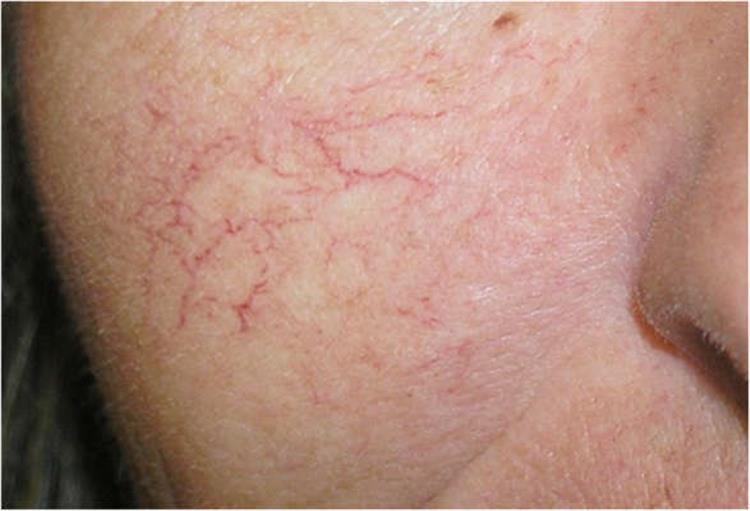 أسباب ظهور الشعيرات الدموية على البشرة وكيف يمكن تجنبها