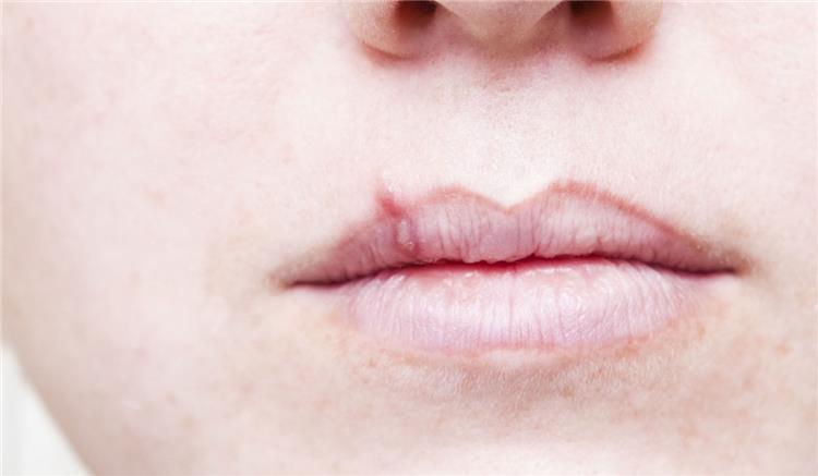 3 مكونات طبيعية لعلاج الحبوب حول الفم