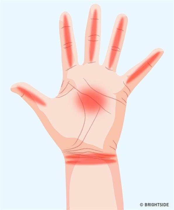 5 علامات تخبرك إياها راحة يدك عن صحتك
