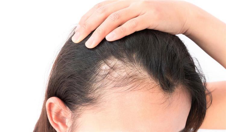 4 وصفات طبيعية لعلاج تساقط الشعر من الأمام