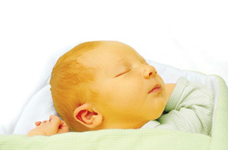 الصفراء عند الأطفال حديثي الولادة الأسباب والأعراض والعلاج وكل ما تودي معرفته عنها