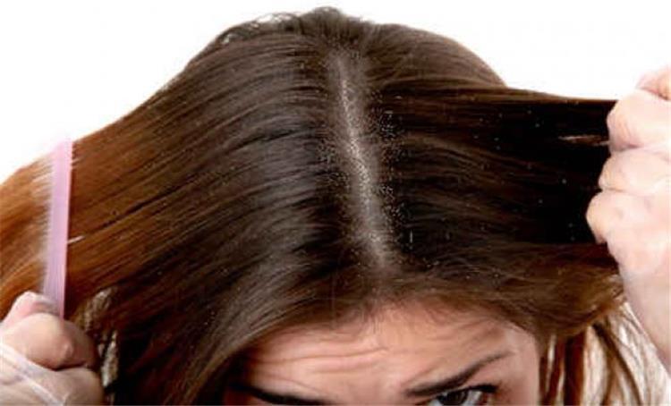 تخلصى من قشرة الشعر بالصبار