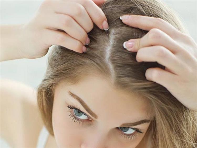 علاج القشرة في الشعر من أول مره