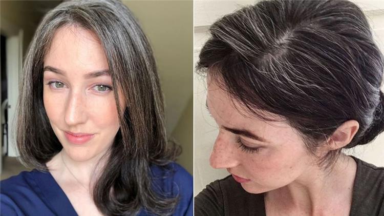 أسباب ظهور الشعر الأبيض في عمر العشرين
