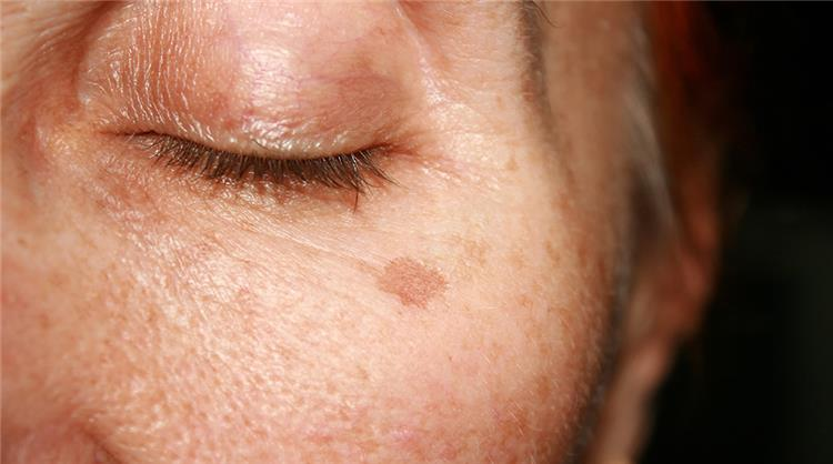أضرار الأشعة فوق البنفسجية على البشرة