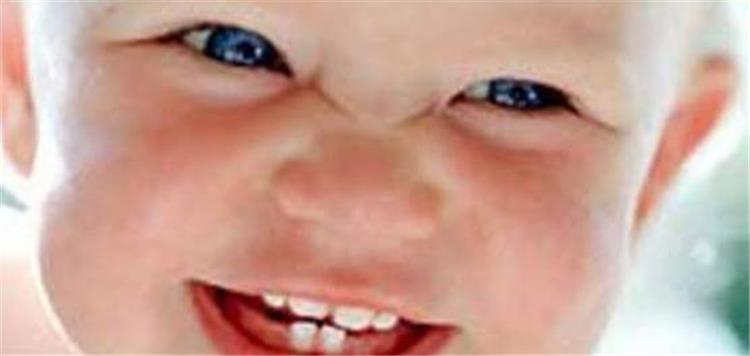 4 أطعمة تصيب طفلك بالإسهال و5 أكلات توقفه