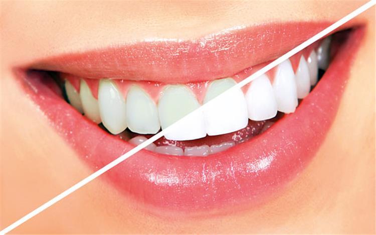 فوائد واضرار الكركم على الاسنان
