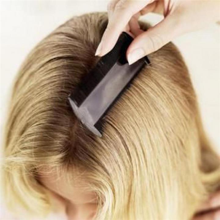 5 علاجات منزلية للتخلص من حشرات الشعر
