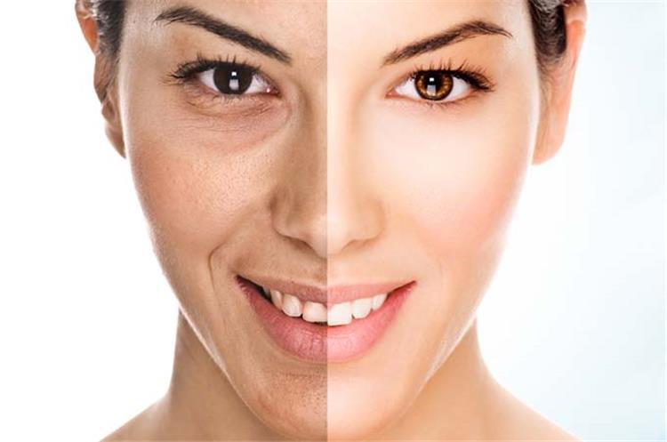 5 ماسكات طبيعية لتبيض الوجه