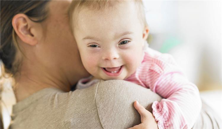 يهمك اعراض متلازمة داون عند الاطفال حديثي الولادة