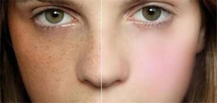 علاج كلف الوجه بالكركم