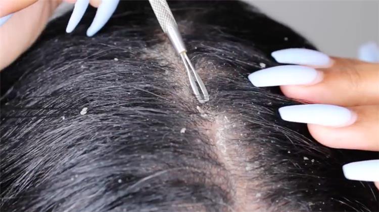 12 وصفة طبيعية للقضاء على قشرة الشعر نهائي ا