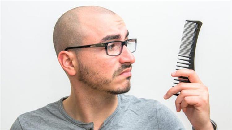 علاج الصلع عند الرجال.. تعرف على أحدث التقنيات