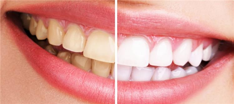 15 وصفة طبيعية لتبييض الأسنان في وقت قياسي