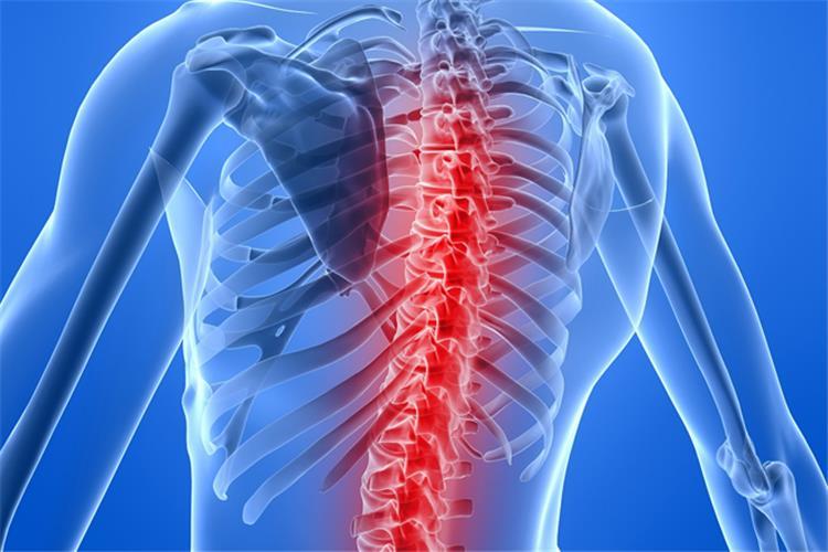 5 ممارسات يومية خاطئة تؤثر على العمود الفقري بشكل سلبي