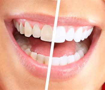وصفة سحرية لتبيض الاسنان فى 10 دقائق