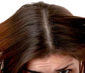 زيت جوز الهند والليمون للتخلص من قشرة الشعر
