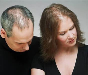 وصفات طبيعية لعلاج تساقط الشعر الوراثي