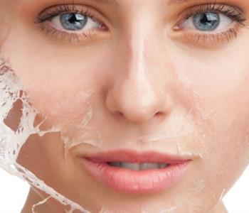 3 وصفات طبيعية لإزالة الشعر من الوجه في المنزل