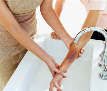 الخطوات الصحيحة للتعامل مع حروق المطبخ أو المكواة