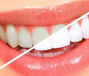 نصائح للتخلص من اصفرار الأسنان وخلطات طبيعية مجربة