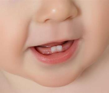 اسباب تأخر التسنين عند الرضع